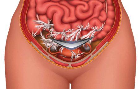 Слипание кишечника