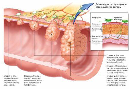 Рак сигмовидного отдела
