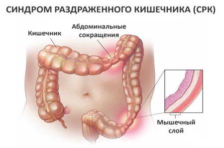 Раздраженный кишечник это