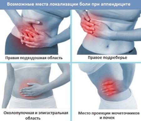 Локализация боли