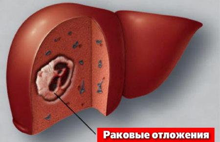 Метастазы в гепатоцитах