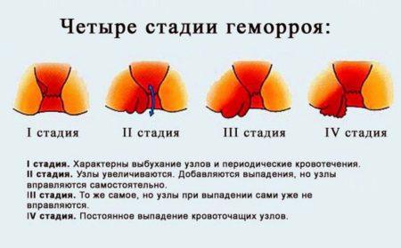 Этапы развития заболевания