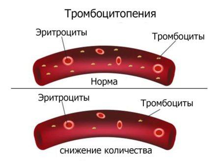 Тромбоцитопения 2 типа