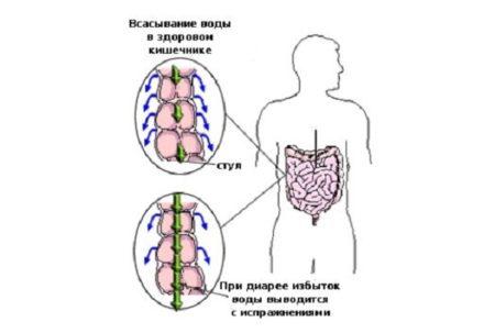 Транзиторная диарея