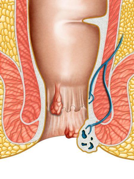 Воспаление узлов