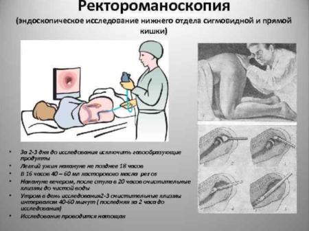 Подготовка к процедуре