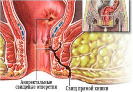 Аноректальный свищ