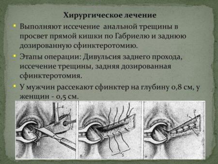 Удаление анальной трещины