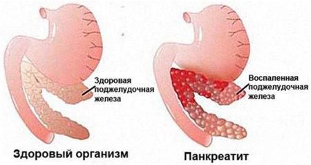 Здоровая и пораженная железа