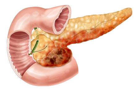Воспаление железы