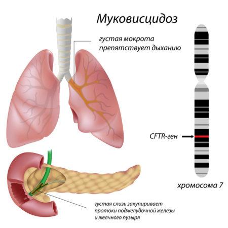 Патогенез муковисцидоза
