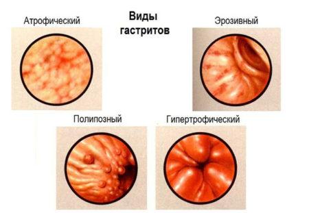 Морфологическая классификация
