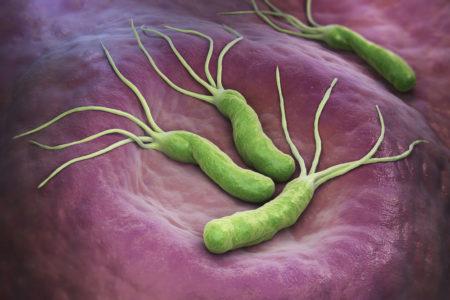 Хеликобактерии в желудке
