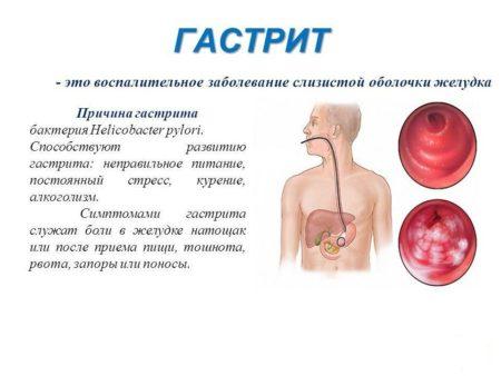 Симптомы, лечение гастрита