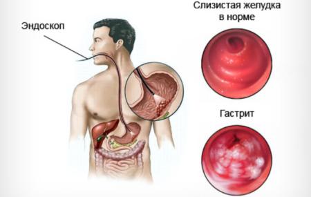 Способ диагностики гастропатии