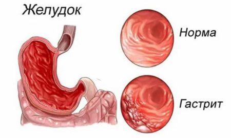 Гипоацидный хронический гастрит