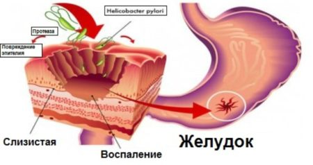 Внедрение в стенку желудка