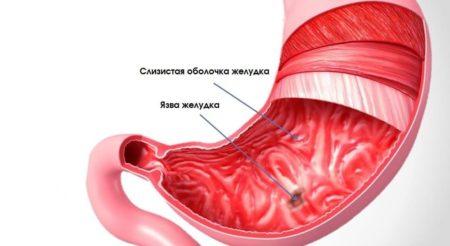 Широко применяется при язве и других поражениях слизистой