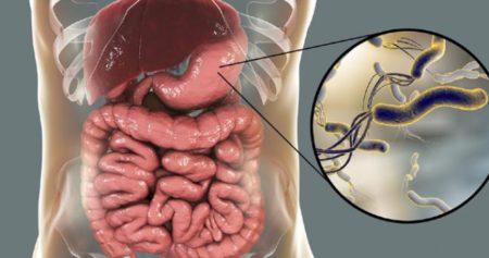 Хеликобактер пилори в желудке