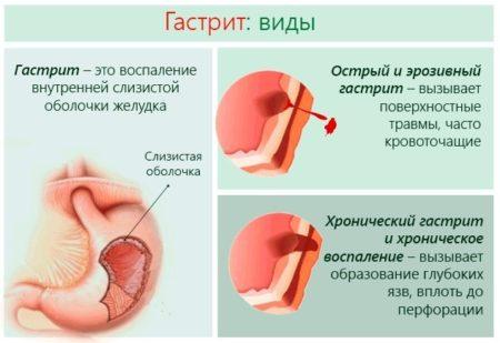 Влияние гастрита на стенку желудка