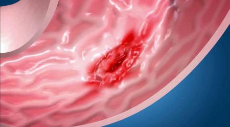 Очаговые элементы воспаления на фоне здоровой слизистой