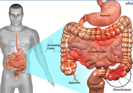 Расположение язв в кишечнике