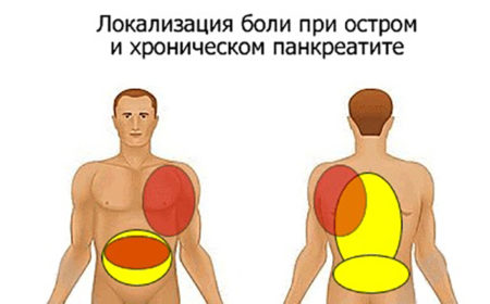 Форма панкреатита