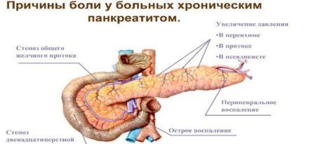 Причины болей