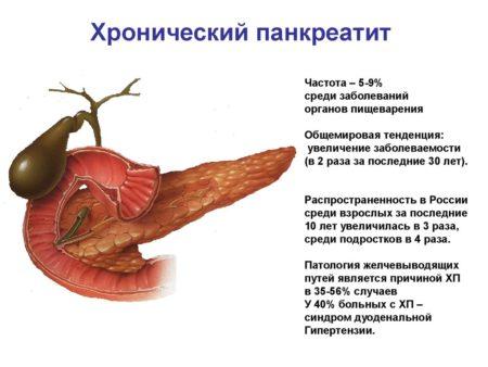 Хронический панкреатит