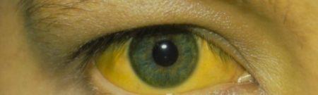 Пожелтение глаз