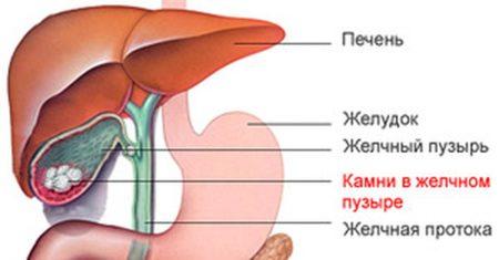 Болезнь желчнокаменная