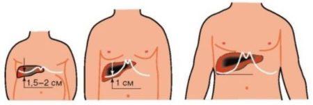 Увеличенный орган
