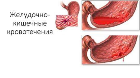 Желудочная кровопотеря